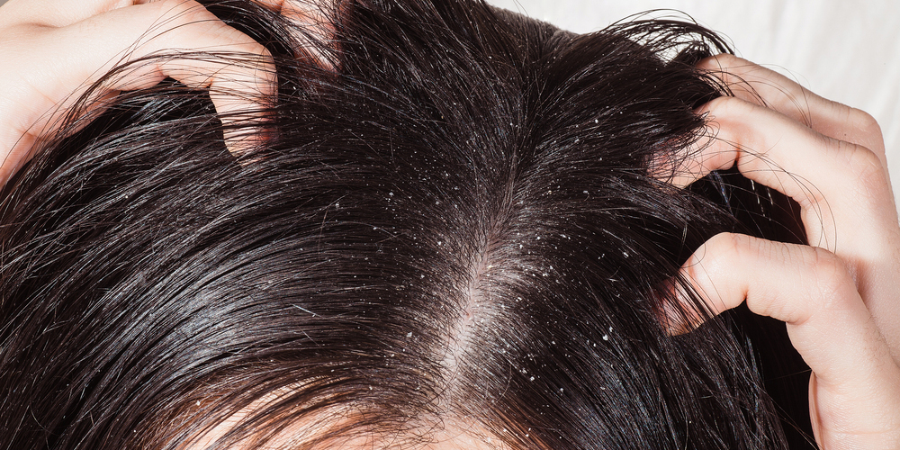 The problem of dry scalp on dark hair