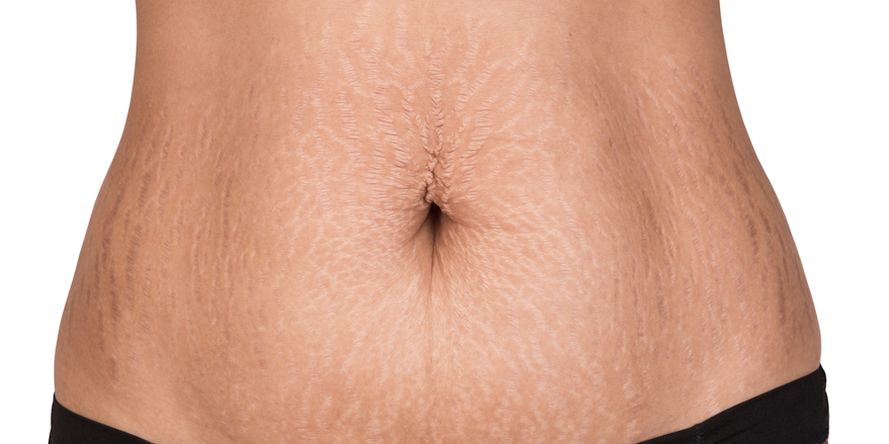 Woman showing stretch marks.