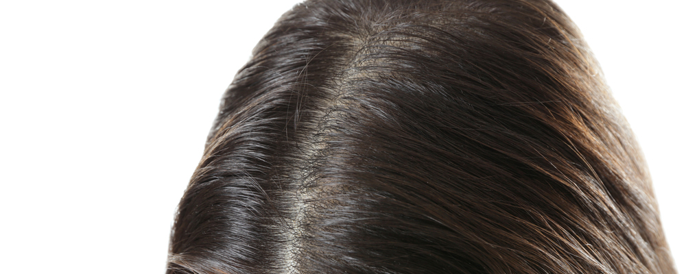 Young woman with hair loss problem