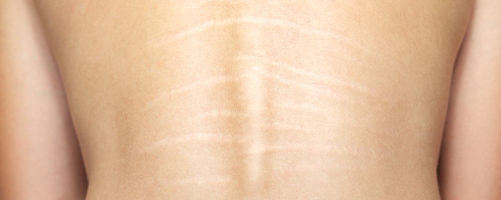 Back stretch marks